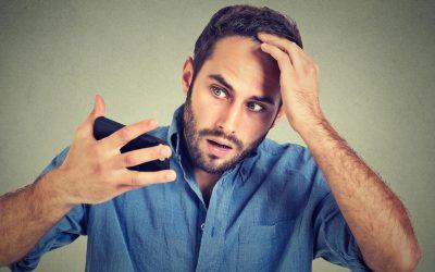 Alopecia: causas y soluciones.