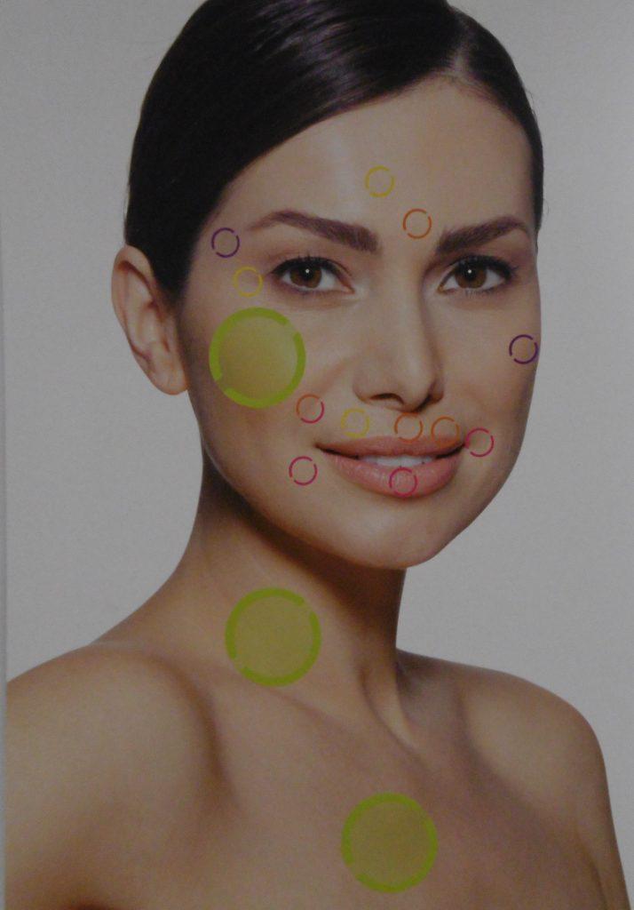 Implantes faciales en Córdoba