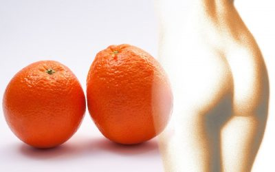 Cavitación: un método eficaz para eliminar la grasa acumulada.