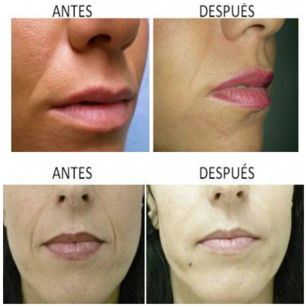 Clínica de implantes estéticos en Córdoba. Técnica de liposowing.