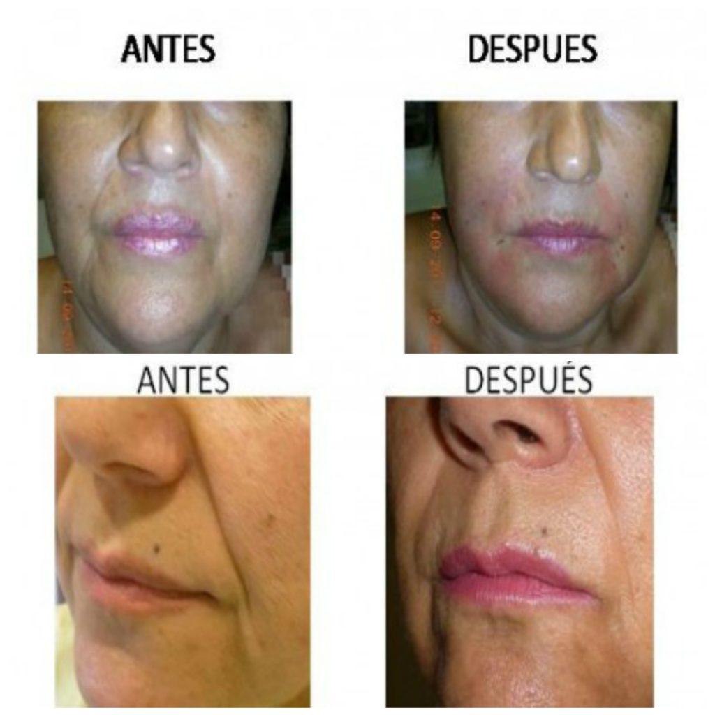 Técnica de liposowing en clínica de implantes estéticos en Córdoba Medicina Estética Carmen Traseira.