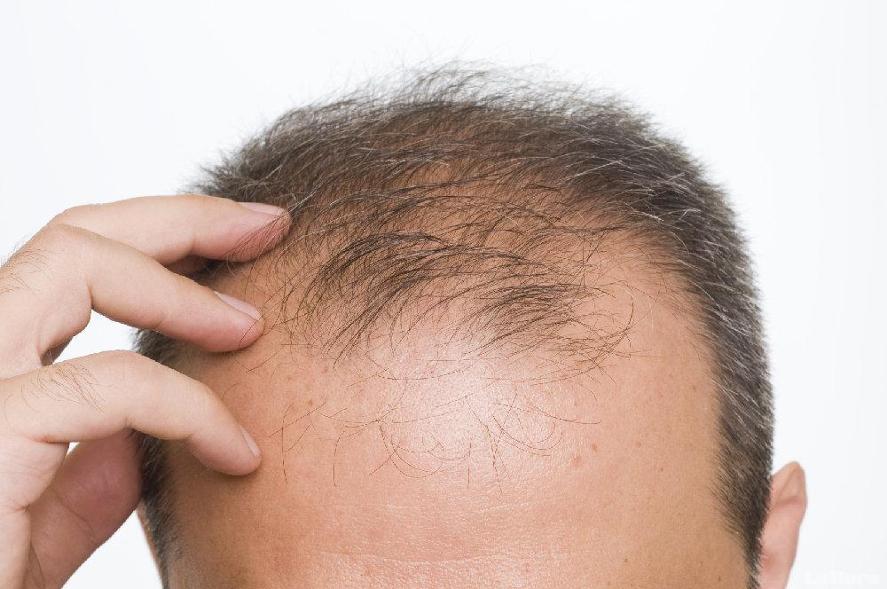 Eliminar alopecia en Córdoba