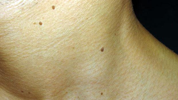 Eliminación de verrugas. Fuente: Sin Lunares y Verrugas.net