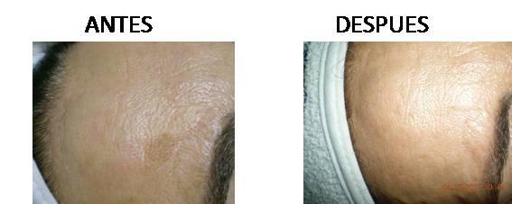 Tratamiento de manchas faciales en paciente.
