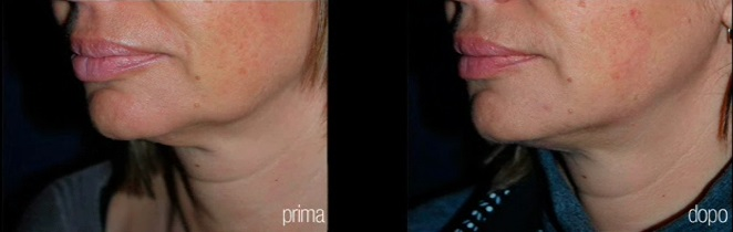 Antes y después de la remodelación de óvalo facial y eliminación de papada con láser