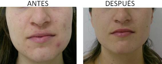 Antes y después del tratamiento del acné