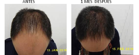 Alopecia_antes-después_01