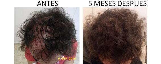 Alopecia_antes-después_02