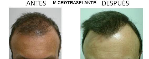 Alopecia_antes-después_03