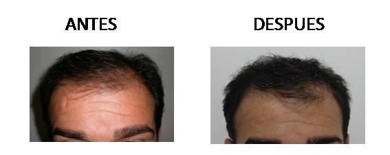 Alopecia_antes-después_04