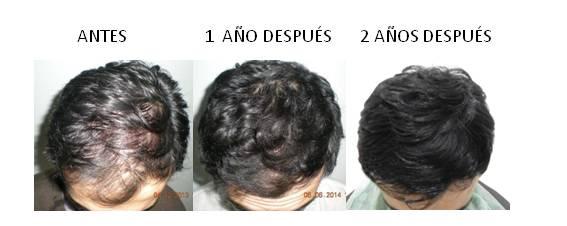Alopecia_antes-después_05