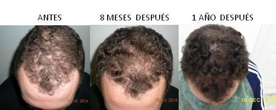 Alopecia_antes-después_06