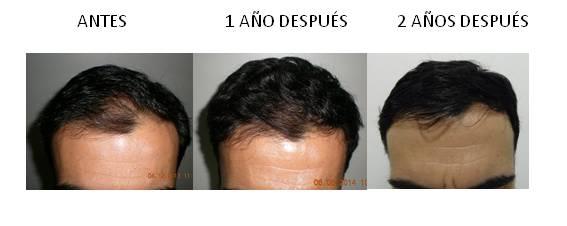 Alopecia_antes-después_07