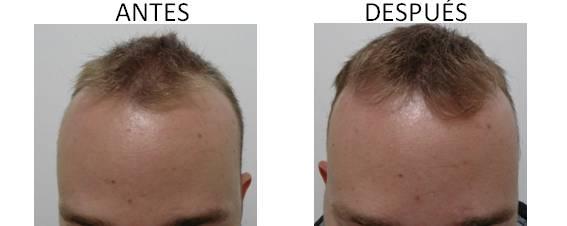 Alopecia_antes-después_10