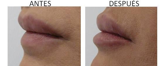 Antes y después del aumento de labios.