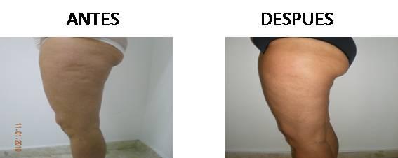 Celulitis_antes-después_1
