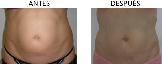 Celulitis_antes-después_2