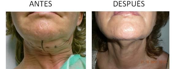Antes y después de aplicar los hilos de suspensión