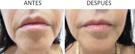 Antes y después de realizar los implantes faciales