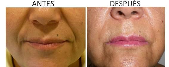 Antes y después del injerto de grasa
