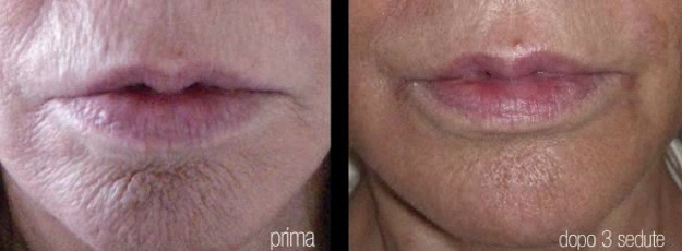 Antes y después del laser resurfacing facial