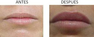 Perfil de los labios