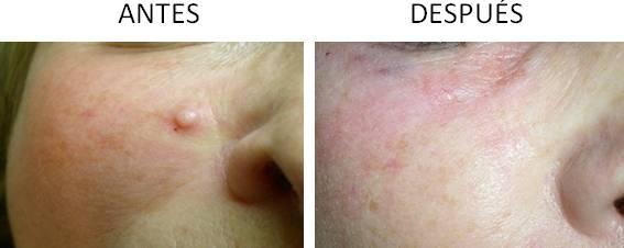 Antes y después del tratamiento para eliminar lunares y verrugas en Córdoba.