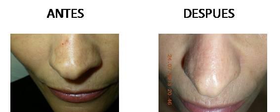Manchas-faciales_antes-y-despues_5