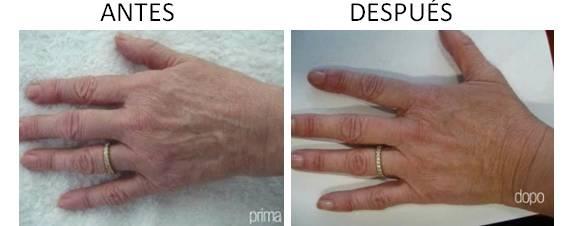 Manos_antes-después_1