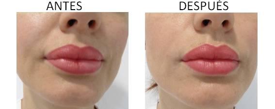 Antes y después del aumento con plasma con Factor de Crecimiento Epidérmico
