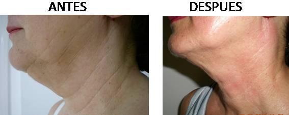 Antes y después de la radiofrecuencia facial AccentXL