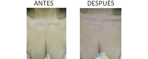 RF-AccentXL-facial_anteAntes y después de la radiofrecuencia facial AccentXLs-y-despues_4