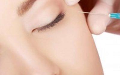 Botox: ¿Qué es el Botox?